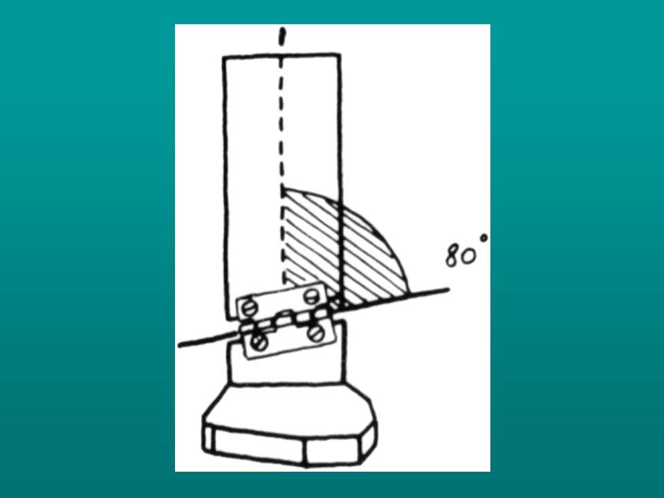 Az álló fázis szakaszai a következők: •initial contact (normálisan = heel contact) •az előláb talajraérkezésének kezdete (jellemzői: hol, és mennyivel az I.