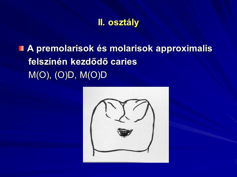 II. osztály A premolarisok és molarisok approximalis felszínén kezdődő caries felszínén kezdődő caries M(O), (O)D, M(O)D M(O), (O)D, M(O)D