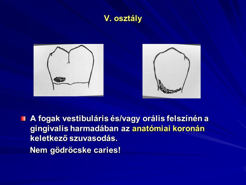 V. osztály A fogak vestibuláris és/vagy orális felszínén a gingivalis harmadában az anatómiai koronán keletkező szuvasodás. Nem gödröcske caries! Nem