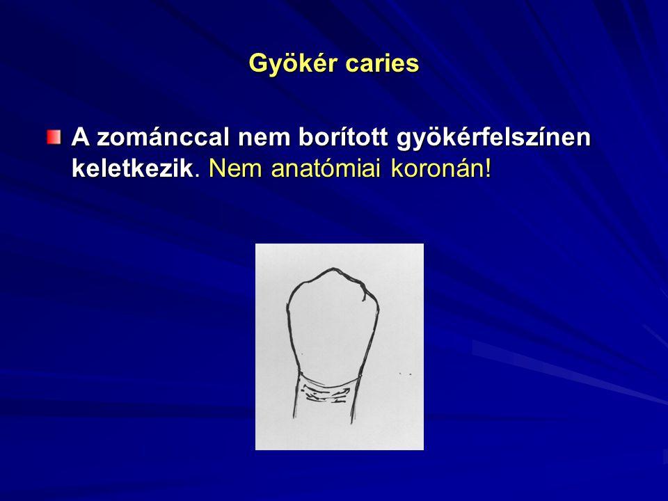 Gyökér caries A zománccal nem borított gyökérfelszínen keletkezik. Nem anatómiai koronán!