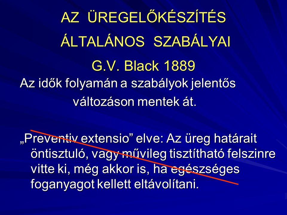 """AZ ÜREGELŐKÉSZÍTÉS ÁLTALÁNOS SZABÁLYAI G.V. Black 1889 Az idők folyamán a szabályok jelentős változáson mentek át. változáson mentek át. """"Preventiv ex"""