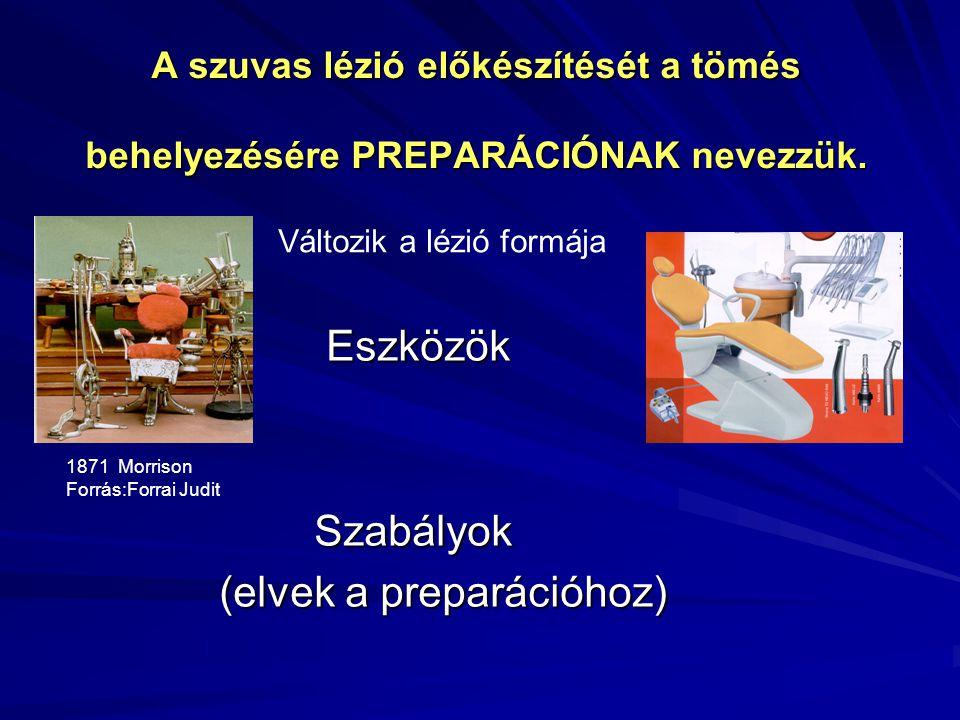 PREPARÁLÓ ESZKÖZÖK Kézi eszközök Forgó eszközök Oszcilláló eszközök Lézer Kémiai-mechanikai caries eltávolítás Levegőabráziós módszer