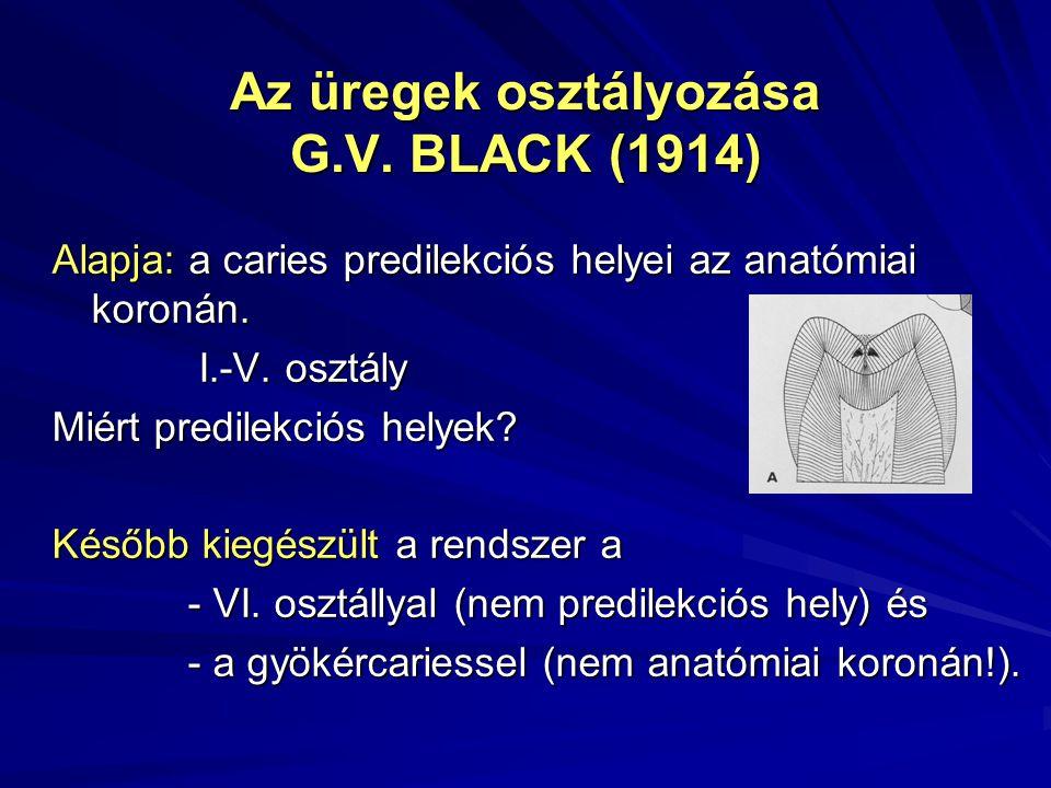 Az üregek osztályozása G.V. BLACK (1914) Alapja: a caries predilekciós helyei az anatómiai koronán. I.-V. osztály I.-V. osztály Miért predilekciós hel