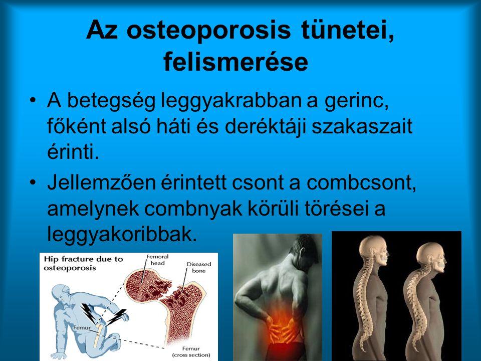 Az osteoporosis tünetei, felismerése •A betegség leggyakrabban a gerinc, főként alsó háti és deréktáji szakaszait érinti. •Jellemzően érintett csont a