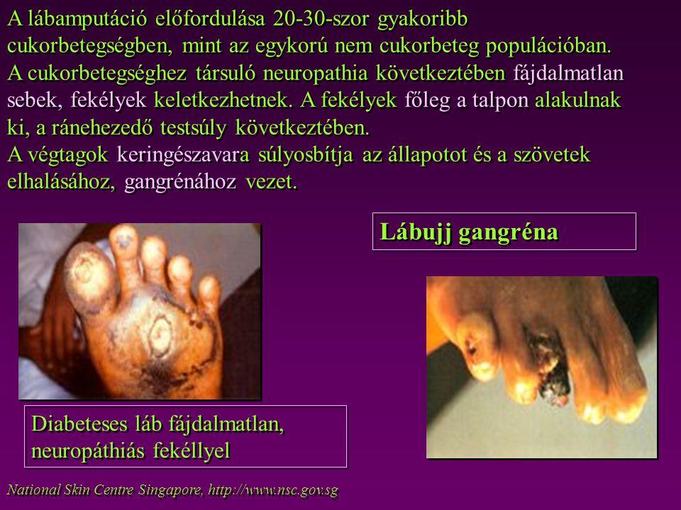 National Skin Centre Singapore, http://www.nsc.gov.sg Lábujj gangréna Diabeteses láb fájdalmatlan, neuropáthiás fekéllyel A lábamputáció előfordulása