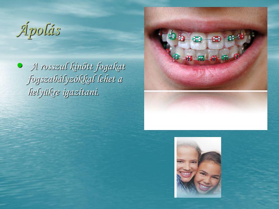 Ápolás • A rosszul kinőtt fogakat fogszabályzókkal lehet a helyükre igazítani.
