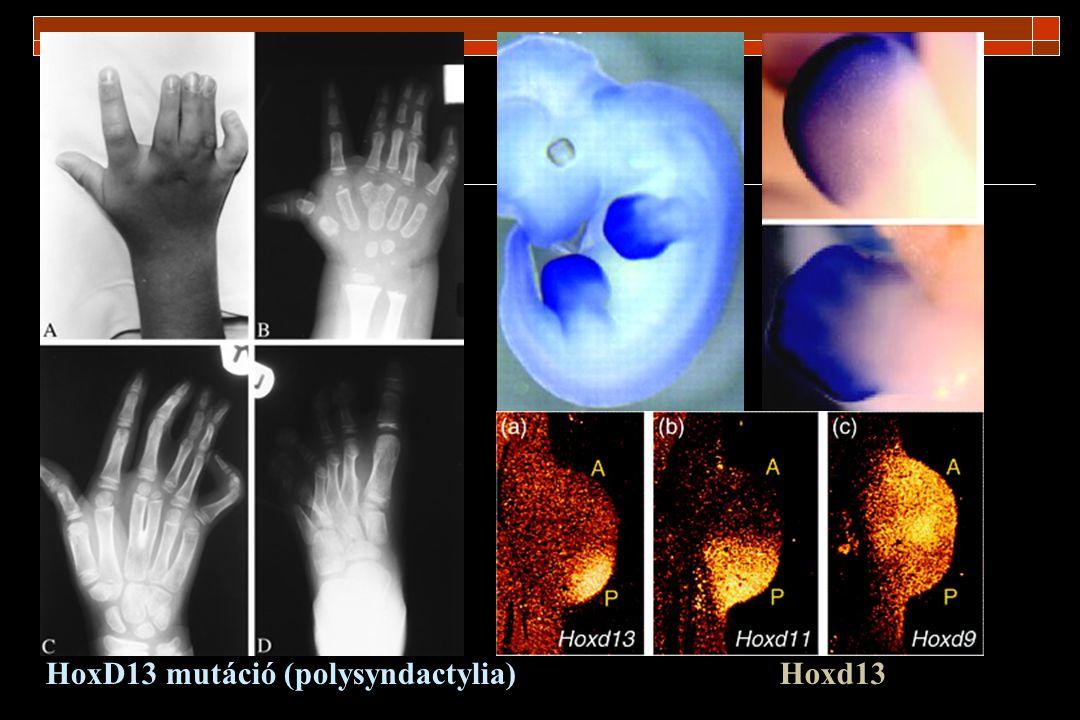 Holt-Oram syndroma: -TBX5 mutáció -1:100.000 -végtag (100%) szív (67%) -phocomelia -radius