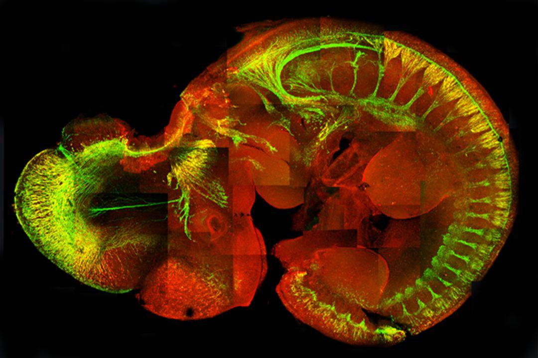 KÓROS FEJLŐDÉS: a normális embryonális fejődés elsődleges zavara, mely a szervek vagy szövetek kialakulását, morfogenezisét érinti.
