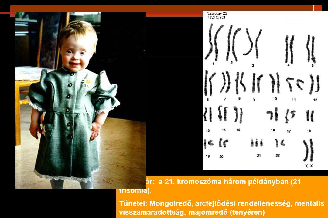 """Az ivari kromoszómák aneuploidiái: Turner szindróma: 45 X,O (másként X monoszómia): nő, de gyenge női fenotípus, sterilitás Egyéb mutációk: XXY: Klienefelter szindróma: férfi, de kis herék, steril, hosszú végtagok XYY: normálisnak tűnő férfi, magas termet, túl heves (robbanékony) viselkedés XXX: """"szupernő : normálisnak tűnő, nagyon nőies testalkat, de gyakran szellemileg visszamaradott."""