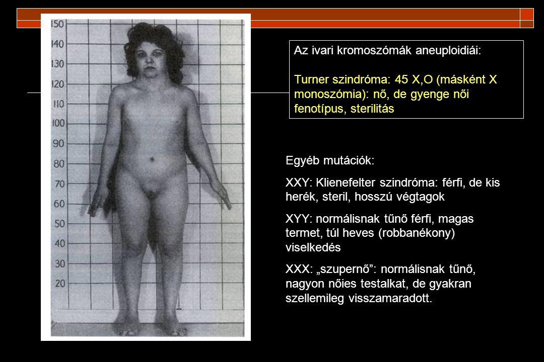 Androgénérzéketlenségi szindróma (androgen insensitivity syndrome) férfi !!!!!.