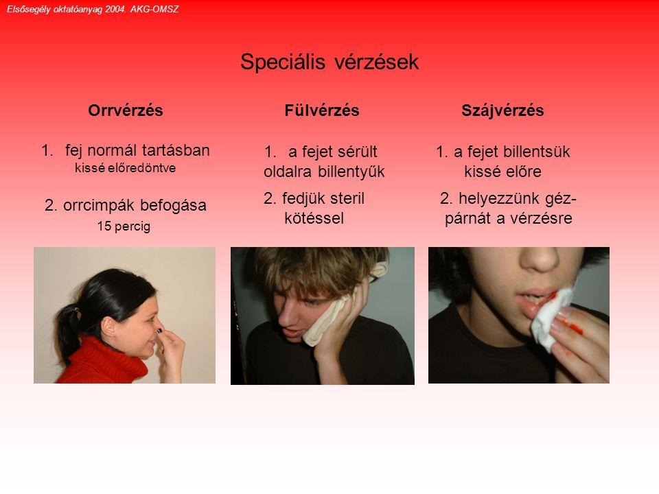 Speciális vérzések Orrvérzés 1.fej normál tartásban kissé előredöntve 2. orrcimpák befogása 15 percig Fülvérzés Elsősegély oktatóanyag 2004. AKG-OMSZ