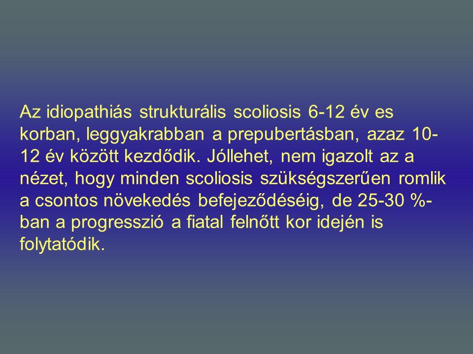 Az idiopathiás strukturális scoliosis 6-12 év es korban, leggyakrabban a prepubertásban, azaz 10- 12 év között kezdődik. Jóllehet, nem igazolt az a né