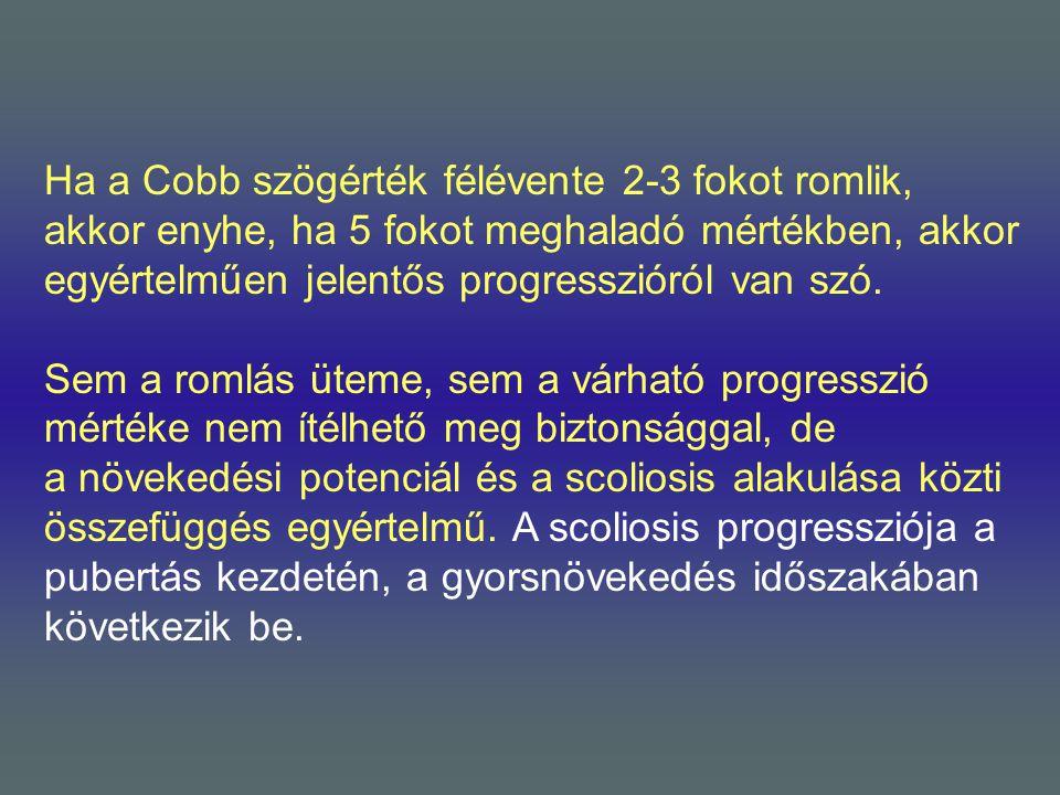 Ha a Cobb szögérték félévente 2-3 fokot romlik, akkor enyhe, ha 5 fokot meghaladó mértékben, akkor egyértelműen jelentős progresszióról van szó. Sem a