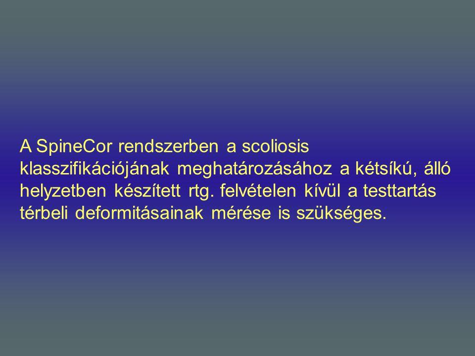 A SpineCor rendszerben a scoliosis klasszifikációjának meghatározásához a kétsíkú, álló helyzetben készített rtg. felvételen kívül a testtartás térbel