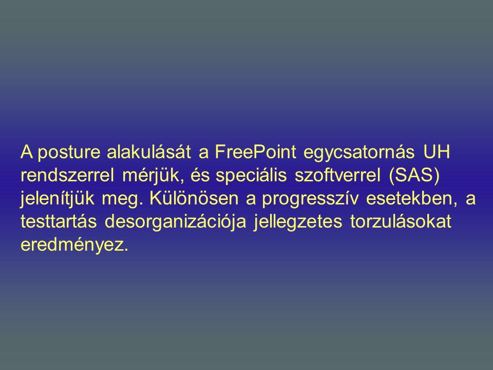 A posture alakulását a FreePoint egycsatornás UH rendszerrel mérjük, és speciális szoftverrel (SAS) jelenítjük meg. Különösen a progresszív esetekben,