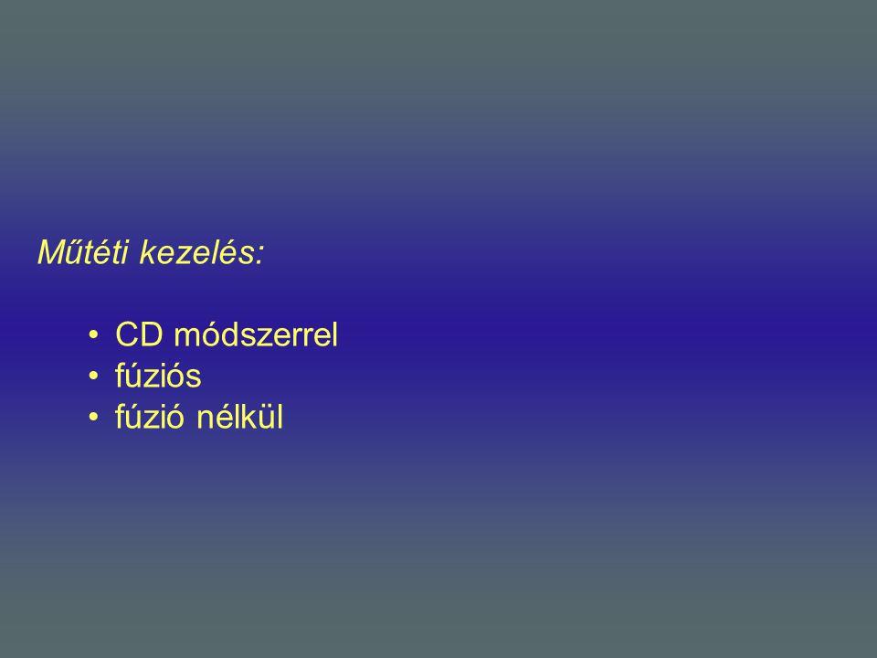 Műtéti kezelés: •CD módszerrel •fúziós •fúzió nélkül