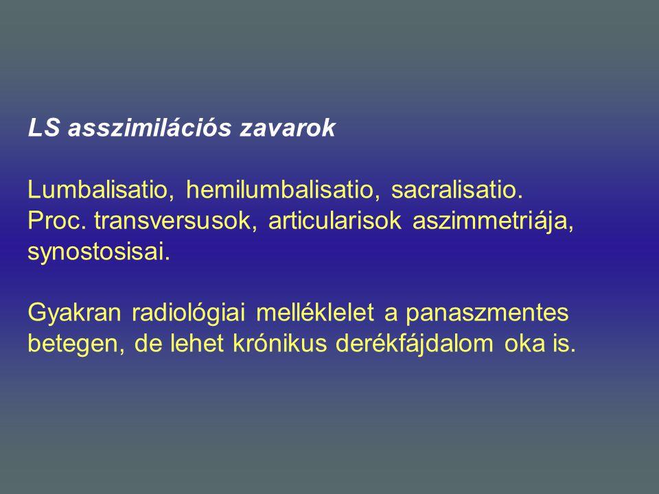 LS asszimilációs zavarok Lumbalisatio, hemilumbalisatio, sacralisatio. Proc. transversusok, articularisok aszimmetriája, synostosisai. Gyakran radioló