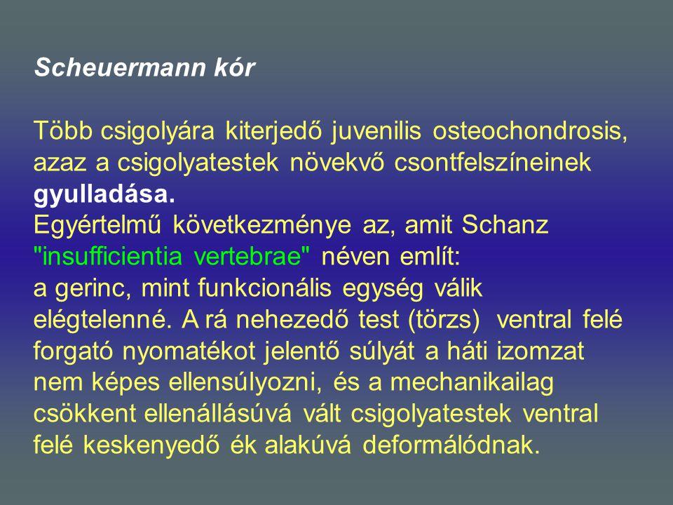 Scheuermann kór Több csigolyára kiterjedő juvenilis osteochondrosis, azaz a csigolyatestek növekvő csontfelszíneinek gyulladása. Egyértelmű következmé