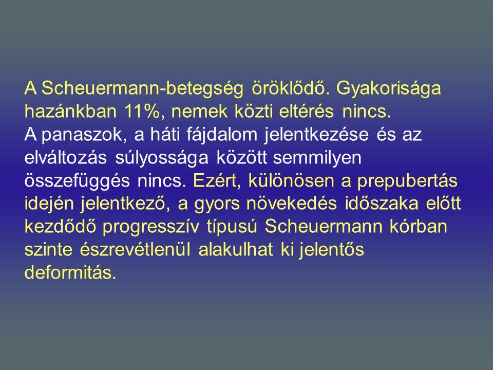 A Scheuermann-betegség öröklődő. Gyakorisága hazánkban 11%, nemek közti eltérés nincs. A panaszok, a háti fájdalom jelentkezése és az elváltozás súlyo