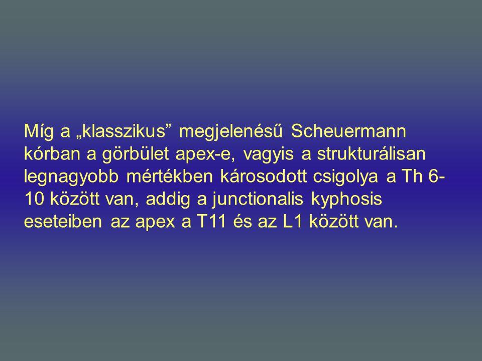 """Míg a """"klasszikus"""" megjelenésű Scheuermann kórban a görbület apex-e, vagyis a strukturálisan legnagyobb mértékben károsodott csigolya a Th 6- 10 közöt"""