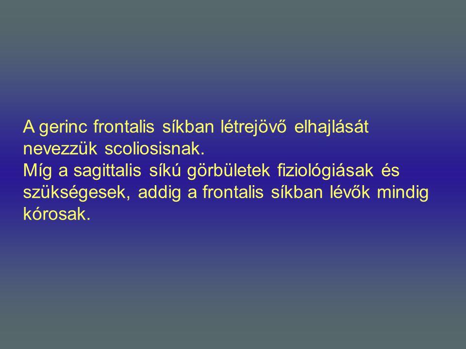 A gerinc frontalis síkban létrejövő elhajlását nevezzük scoliosisnak. Míg a sagittalis síkú görbületek fiziológiásak és szükségesek, addig a frontalis