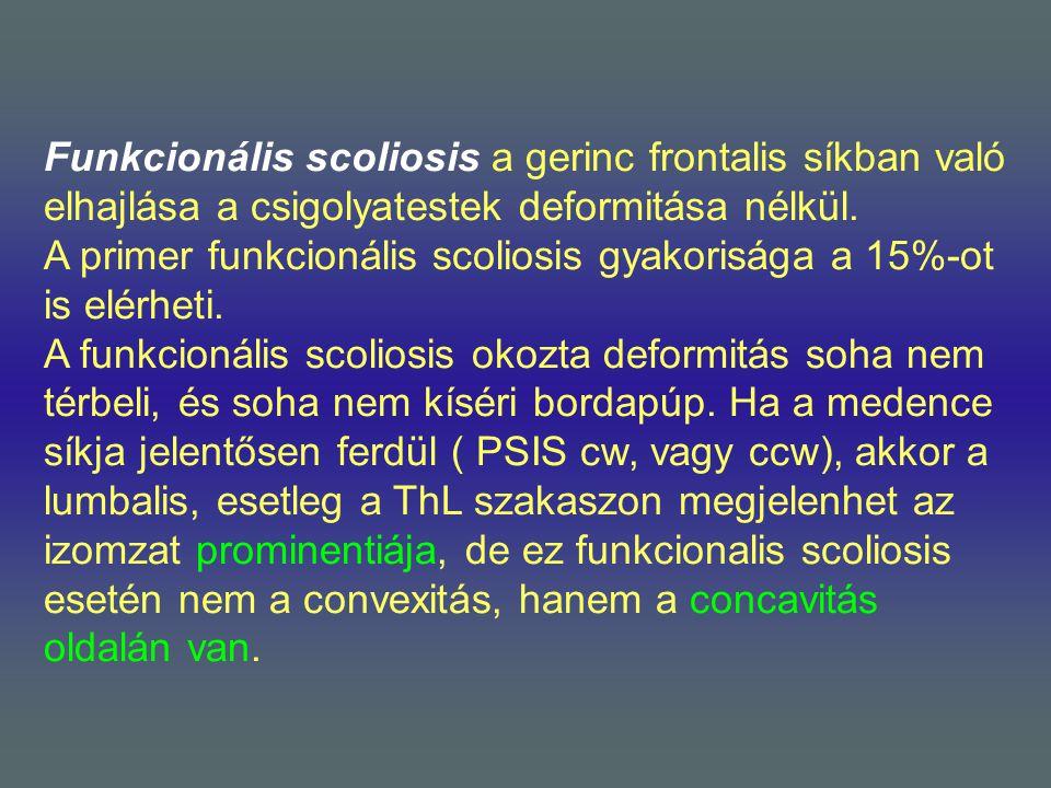 Funkcionális scoliosis a gerinc frontalis síkban való elhajlása a csigolyatestek deformitása nélkül. A primer funkcionális scoliosis gyakorisága a 15%