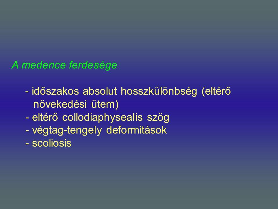 A medence ferdesége - időszakos absolut hosszkülönbség (eltérő növekedési ütem) - eltérő collodiaphysealis szög - végtag-tengely deformitások - scolio