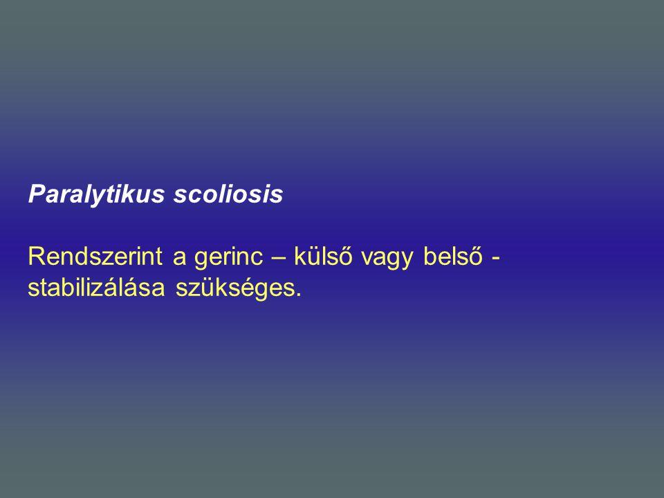 Paralytikus scoliosis Rendszerint a gerinc – külső vagy belső - stabilizálása szükséges.