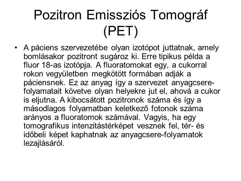  + bomlás + + + + + + + + + Neutron szegény izotópok pozitron kibocsátással +anti-neutrino pozitron következmény : egy proton helyett • neutron • ant