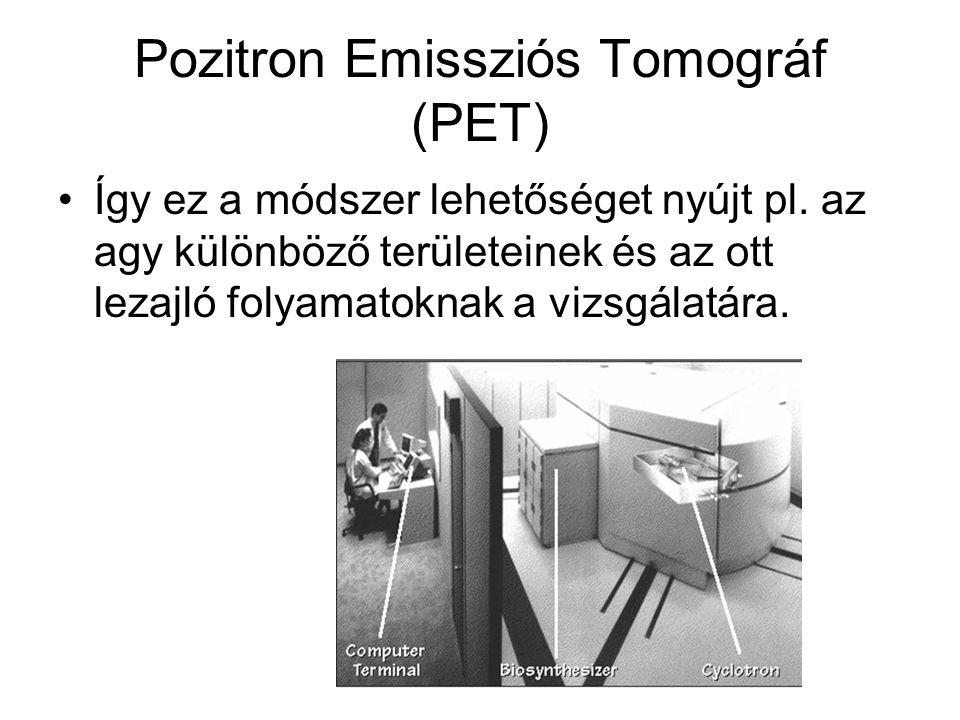 Pozitron Emissziós Tomográf (PET) •A páciens szervezetébe olyan izotópot juttatnak, amely bomlásakor pozitront sugároz ki. Erre tipikus példa a fluor