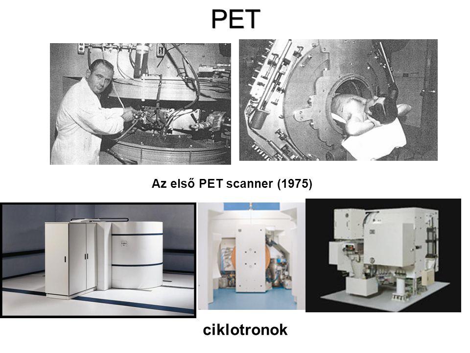 Pozitron Emissziós Tomográf (PET) •Így ez a módszer lehetőséget nyújt pl. az agy különböző területeinek és az ott lezajló folyamatoknak a vizsgálatára