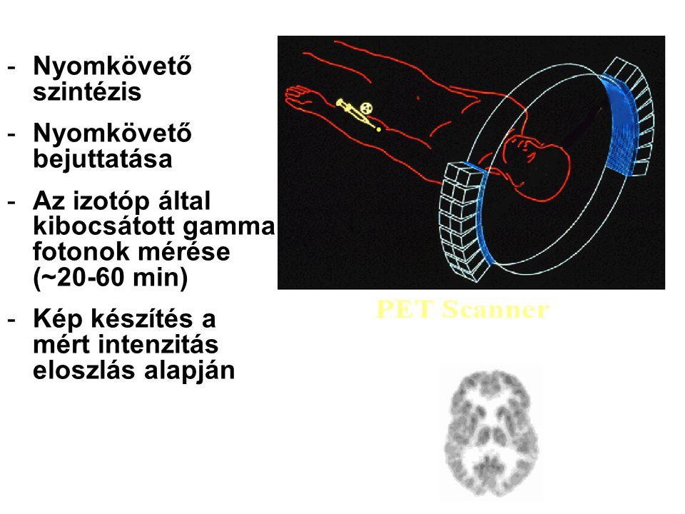 PET Az első PET scanner (1975) ciklotronok