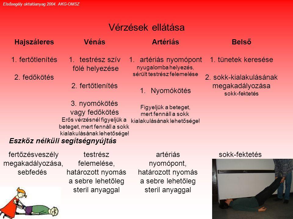 Vérzések ellátása Hajszáleres 1. fertőtlenítés 2. fedőkötés Vénás 1.testrész szív fölé helyezése 2. fertőtlenítés 3. nyomókötés vagy fedőkötés Erős vé