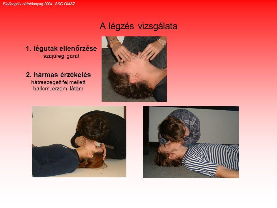A légzés vizsgálata 1. légutak ellenőrzése szájüreg, garat 2. hármas érzékelés hátraszegett fej mellett hallom, érzem, látom Elsősegély oktatóanyag 20