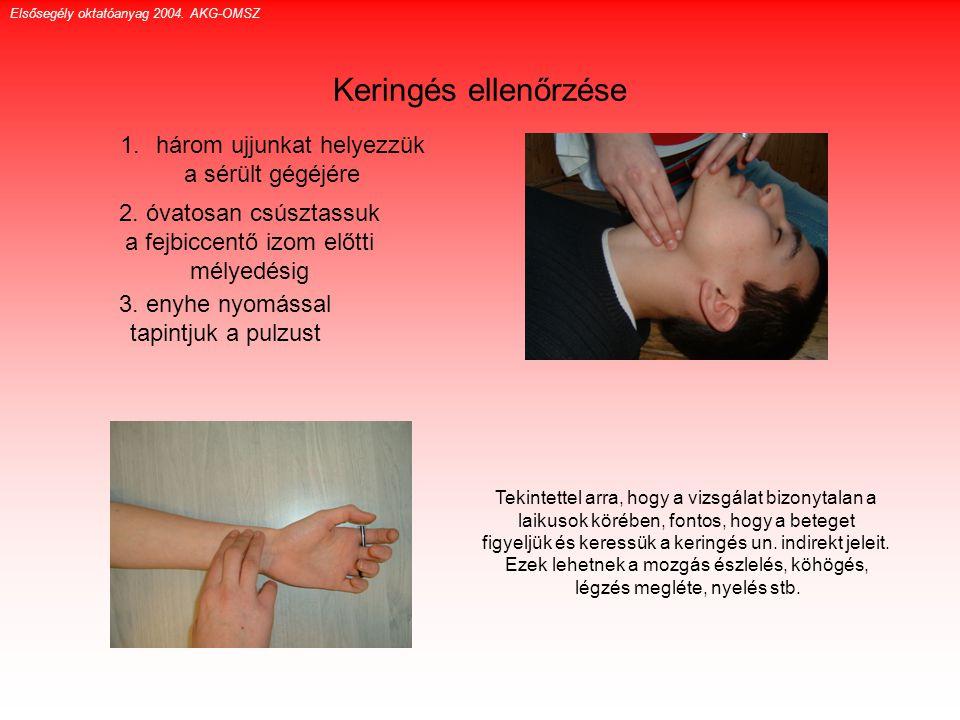 Keringés ellenőrzése Elsősegély oktatóanyag 2004. AKG-OMSZ 1.három ujjunkat helyezzük a sérült gégéjére 2. óvatosan csúsztassuk a fejbiccentő izom elő