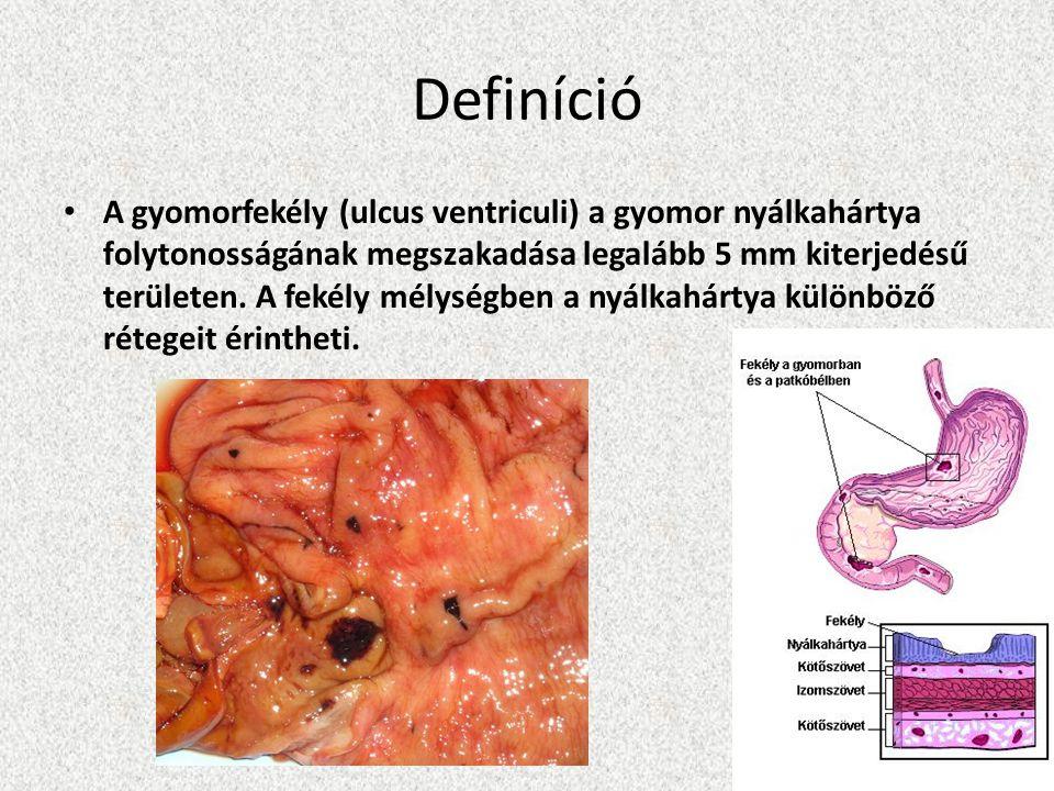 Definíció • A gyomorfekély (ulcus ventriculi) a gyomor nyálkahártya folytonosságának megszakadása legalább 5 mm kiterjedésű területen. A fekély mélysé