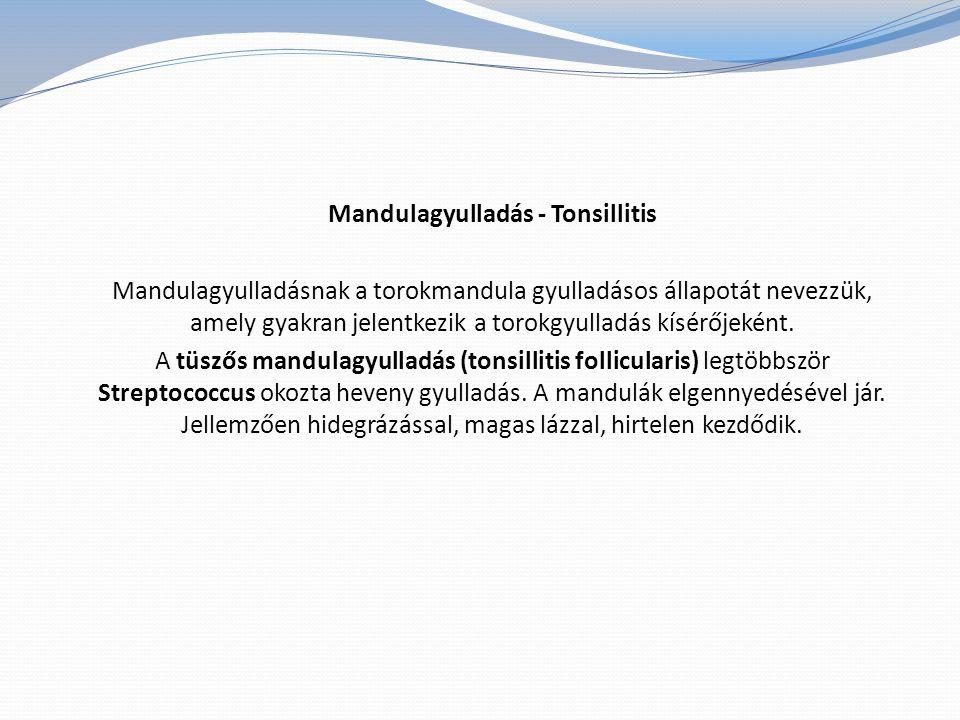 Mandulagyulladás - Tonsillitis Mandulagyulladásnak a torokmandula gyulladásos állapotát nevezzük, amely gyakran jelentkezik a torokgyulladás kísérőjeként.