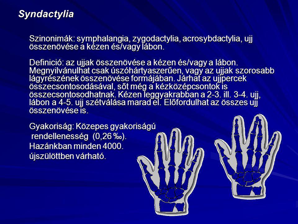 Syndactylia Szinonimák: symphalangia, zygodactylia, acrosybdactylia, ujj összenövése a kézen és/vagy lábon. Definició: az ujjak összenövése a kézen és