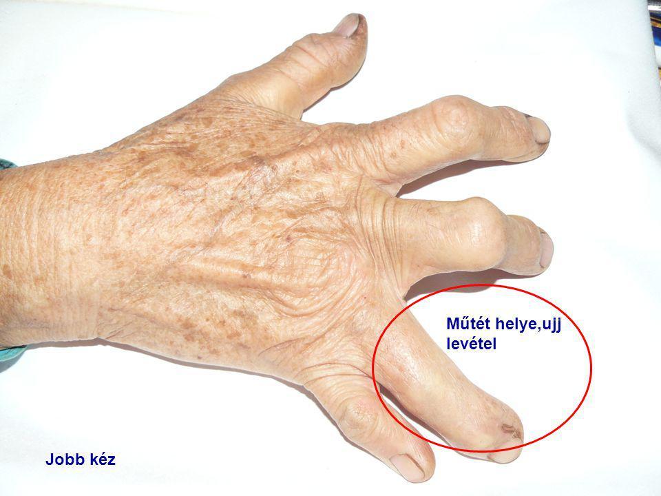 Műtét helye,ujj levétel Jobb kéz