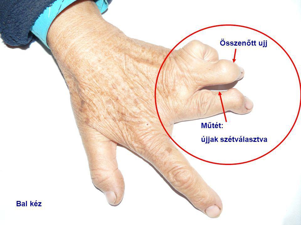 Bal kéz Műtét: újjak szétválasztva Összenőtt ujj