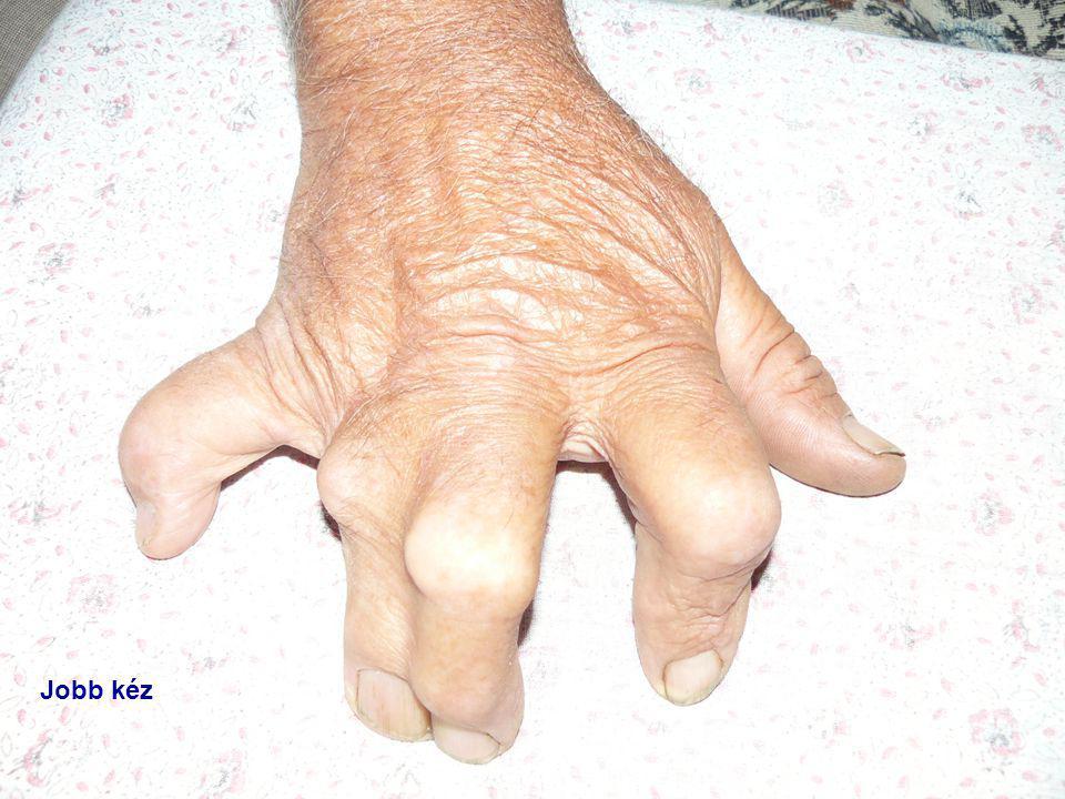 Jobb kéz