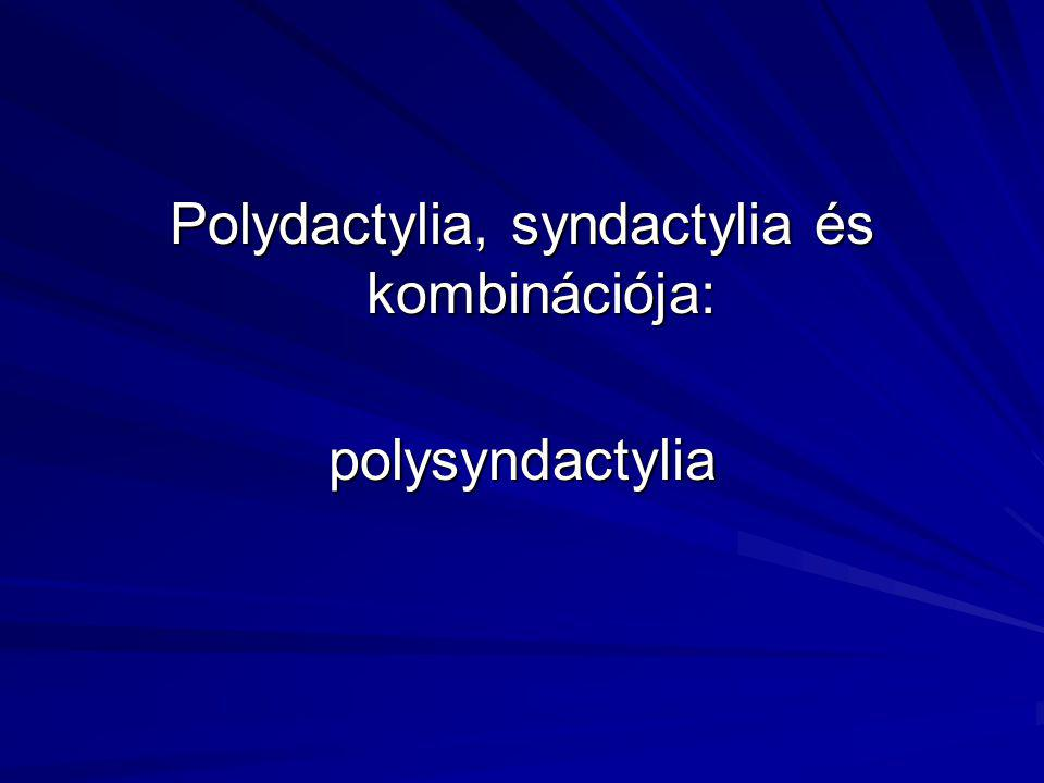 Polydactylia, syndactylia és kombinációja: polysyndactylia