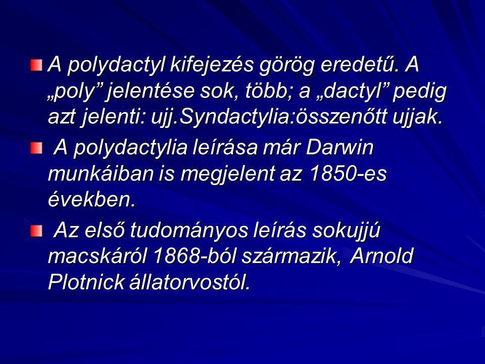 """A polydactyl kifejezés görög eredetű. A """"poly"""" jelentése sok, több; a """"dactyl"""" pedig azt jelenti: ujj.Syndactylia:összenőtt ujjak. A polydactylia leír"""