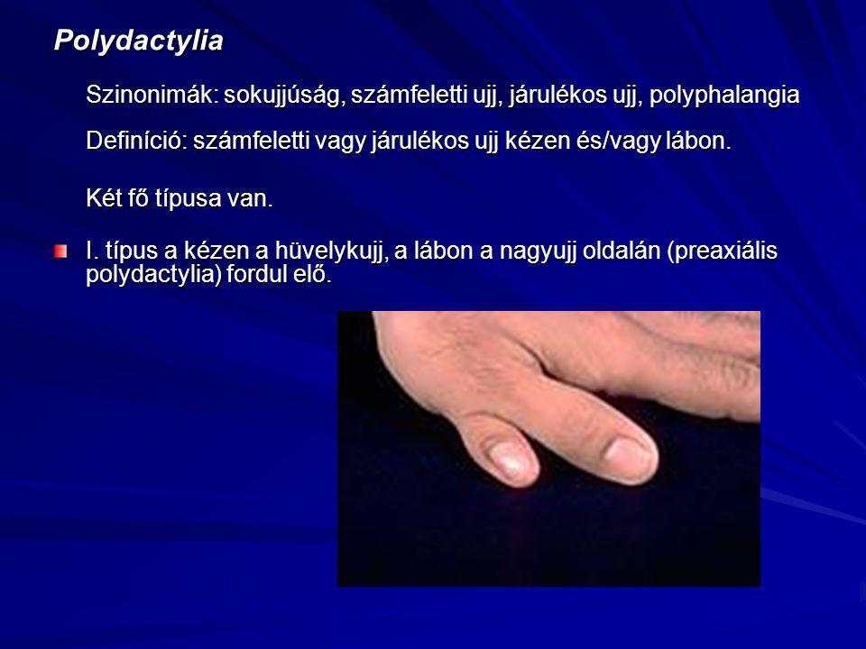 Polydactylia Szinonimák: sokujjúság, számfeletti ujj, járulékos ujj, polyphalangia Definíció: számfeletti vagy járulékos ujj kézen és/vagy lábon. Két