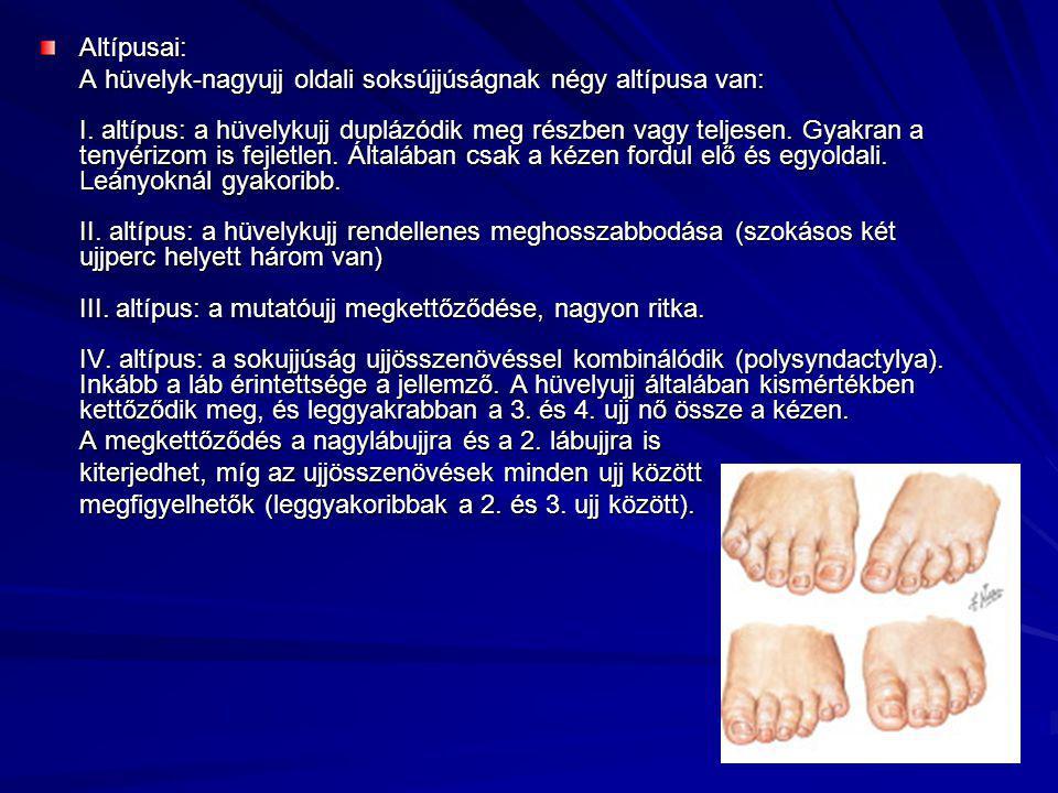 Altípusai: A hüvelyk-nagyujj oldali soksújjúságnak négy altípusa van: I. altípus: a hüvelykujj duplázódik meg részben vagy teljesen. Gyakran a tenyéri