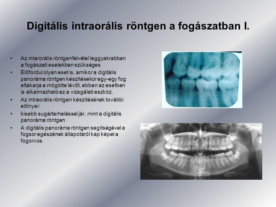 Digitális intraorális röntgen a fogászatban I. •Az intarorális röntgenfelvétel leggyakrabban a fogászati esetekben szükséges. •Előfordul olyan eset is