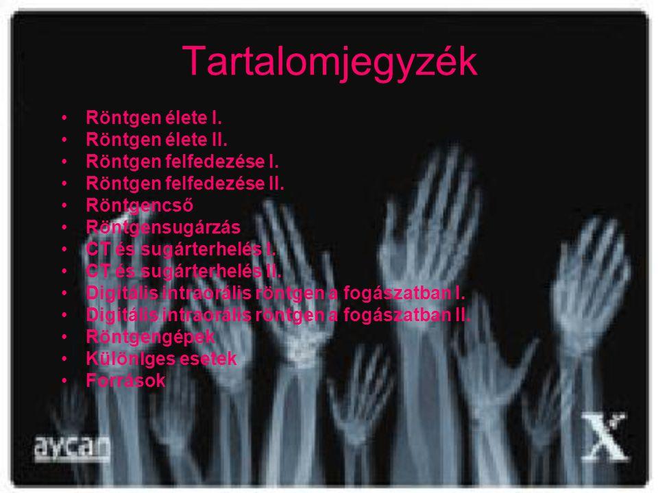 Tartalomjegyzék •R•Röntgen élete I. •R•Röntgen élete II. •R•Röntgen felfedezése I. •R•Röntgen felfedezése II. •R•Röntgencső •R•Röntgensugárzás •C•CT é