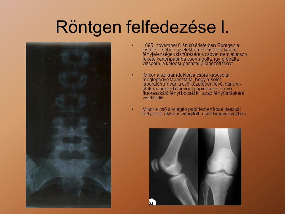 Röntgen felfedezése I. •1895. november 8-án kísérleteiben Röntgen a kisülési csőben az elektromos kisülést kísérő fényjelenségek kiszűrésére a csövet