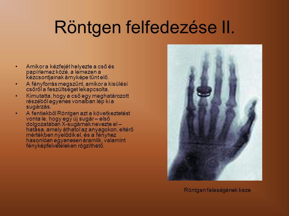 Röntgen felfedezése II. •Amikor a kézfejét helyezte a cső és papírlemez közé, a lemezen a kézcsontjainak árnyképe tűnt elő. •A fényforrás megszűnt, am