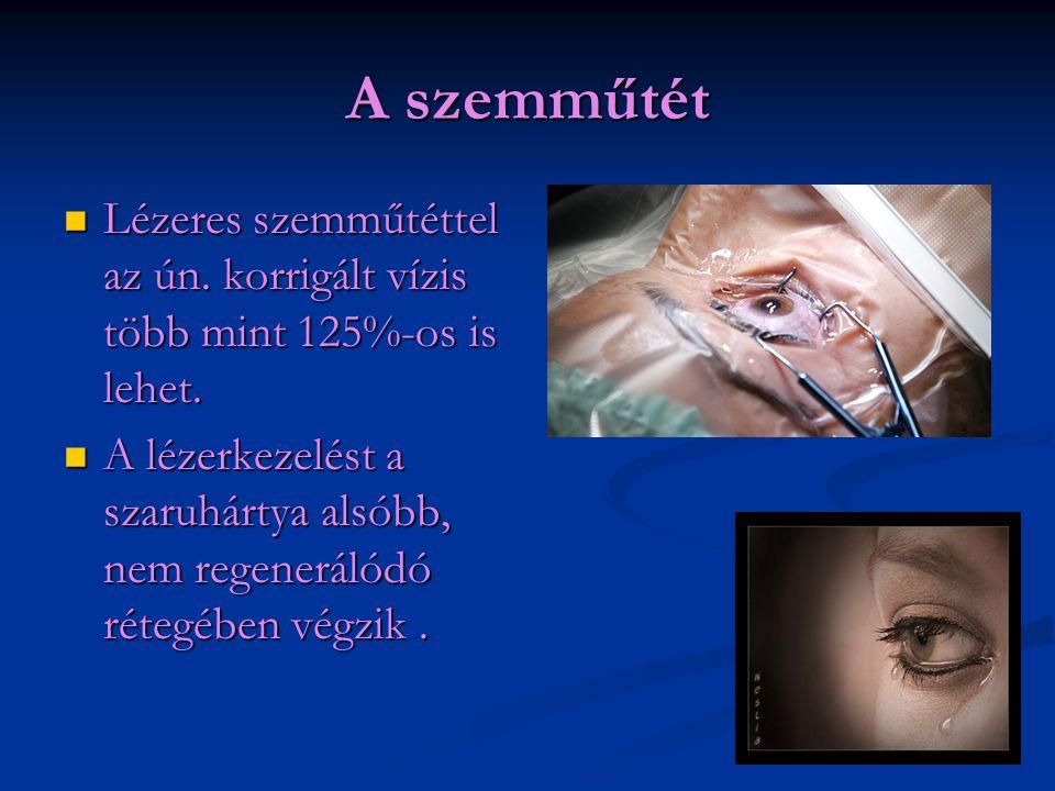 A szemműtét  Lézeres szemműtéttel az ún. korrigált vízis több mint 125%-os is lehet.  A lézerkezelést a szaruhártya alsóbb, nem regenerálódó rétegéb